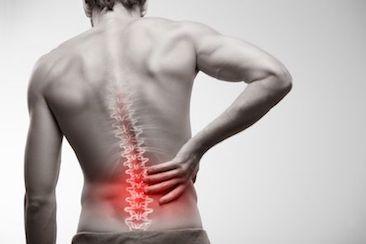 Rücken schmerzen